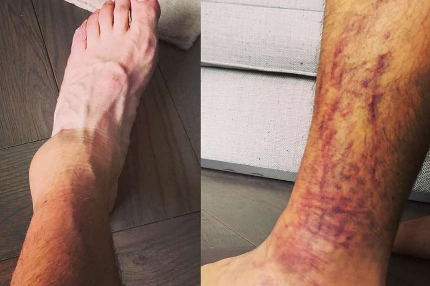 McIlroy posted a picture of his healing leg.