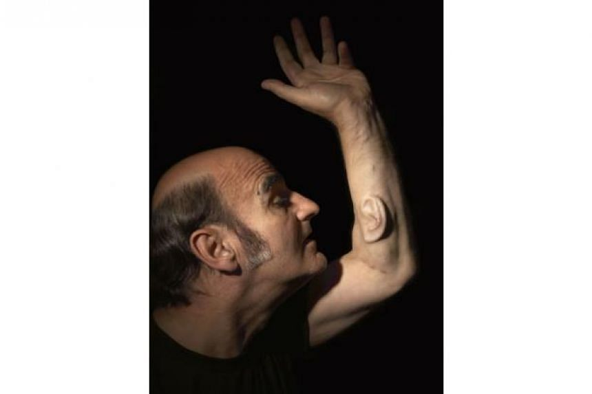 Australian artist and academic Stelarc revealing the implanted ear on his arm.