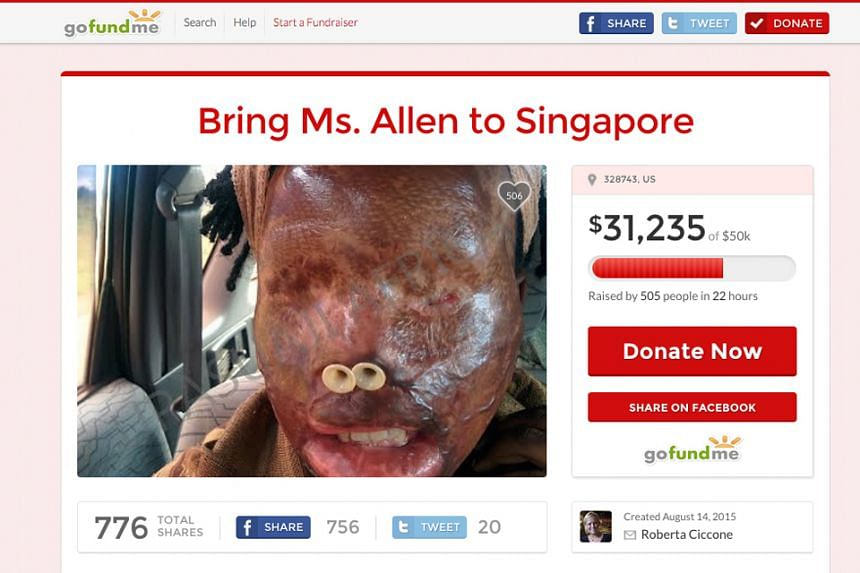An online donation collection for a Uganda acid attack victim to come to Singapore for treatment raised over $50,000 in two days.