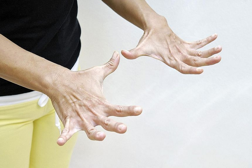Stiff fingers with a locking sensation when moving them could point to trigger finger. ST PHOTO ILLUSTRATION