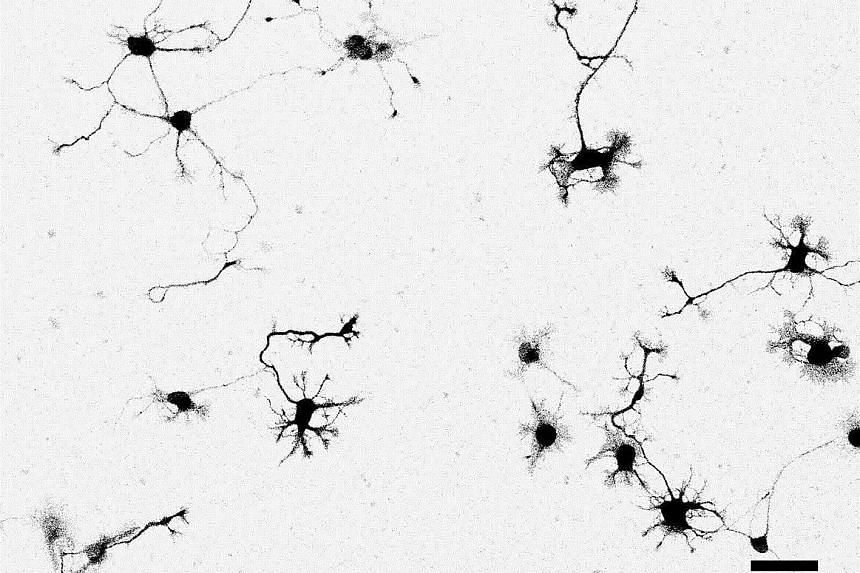 These live neurons, stained with a chemical dye called Neuron Orange, or NeuO, were captured at 20 times magnification under a widefield microscope. The dye is what allows neurons to be distinguished easily from other types of brain cells. NeuO is th