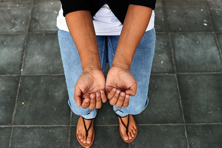 Ms Desi Perawati showing the scars on her arms, allegedly caused when she was cut with a porcelain shard.