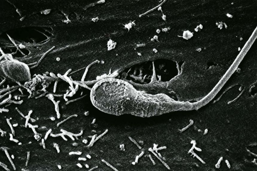 A Scanning Electron Micrograph of human sperm.