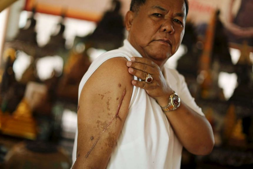 Red shirt movement leader Kwanchai Praipana shows a scar on his right arm, after he was shot by an unidentified gunman last year at his office in Udon Thani, Thailand, on September 15, 2015. From self-imposed exile, the influential leader of Thailand