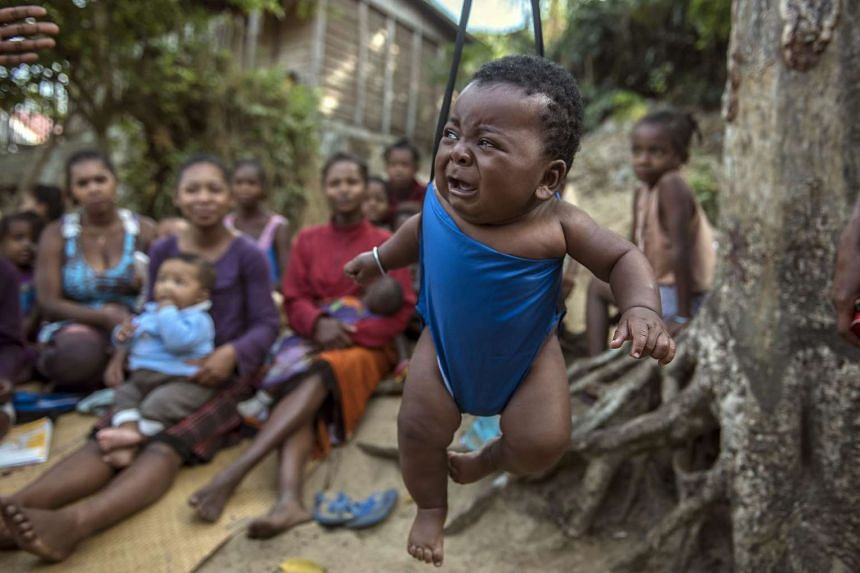 A child gets his weight taken at a UNICEF supported community nutrition site in Fort Dauphin, Madagascar on Sept 24. .