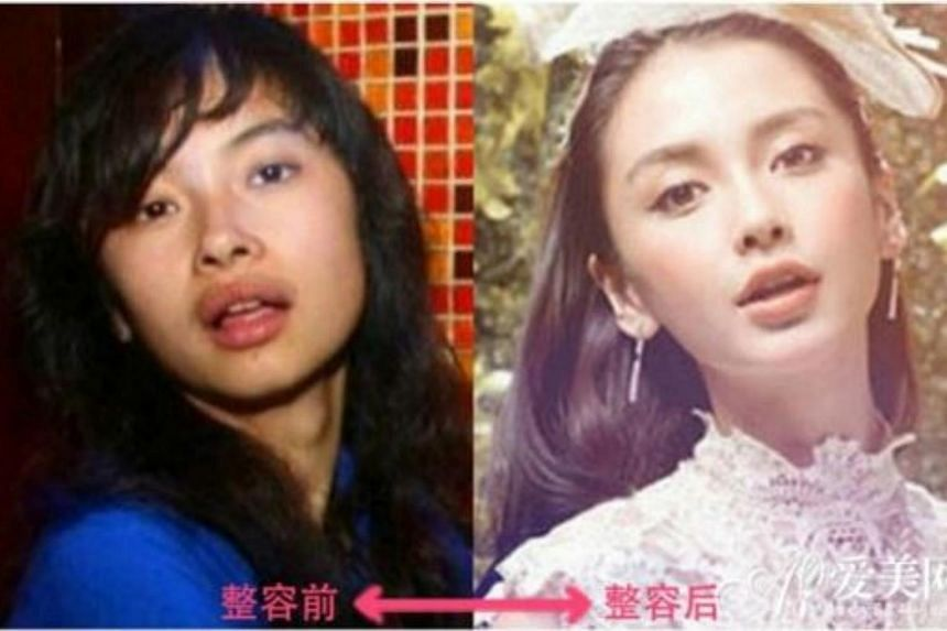 Purported before-and-after photos of Angelababy on the Chinese Internet.