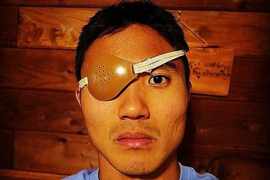 Singapore marathoner Mok Ying Ren wearing a patch to protect his injured eye. He suffered the injury while stretching with an elastic band which slipped off his foot and hit him square in the eyes.