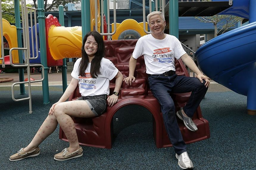 Ms Yvonne Chan, 23, who has psoriasis, has embraced her condition, which left dark patches on her legs. Mr Jerome Yong, 51, had some of his worst outbreaks of psoriasis in his 30s. Now his condition is better and he hopes to create more awareness of