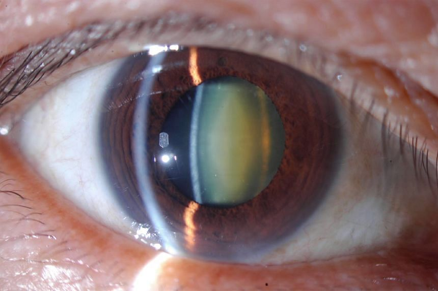 An eye lens which is normally clean becomes yellowish due to cataract.