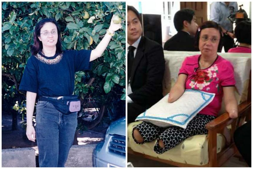 Ms Sarina Kaur before and after she lost her limbs.