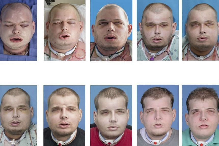 A series of photos showing the progress of the face transplant surgery.