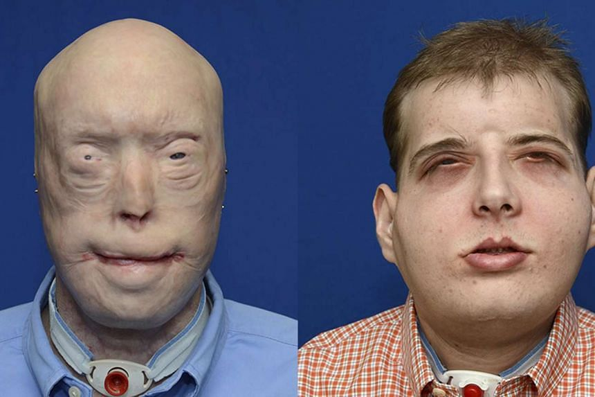 Volunteer firefighter Patrick Hardison, 41, of Senatobia, Mississippi is shown in this composite photo showing before-and-after face transplant surgery.