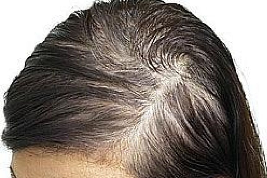 More than half of women will notice thinning hair after menopause. The most common cause is androgenetic alopecia, or female pattern hair loss.