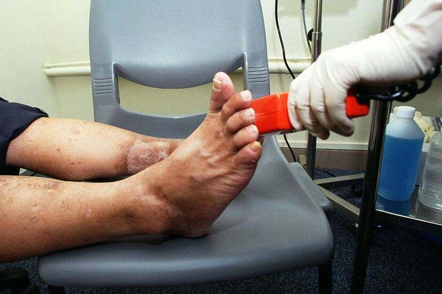 Equipment being used to assess how sensitive a diabetes patient's feet are.