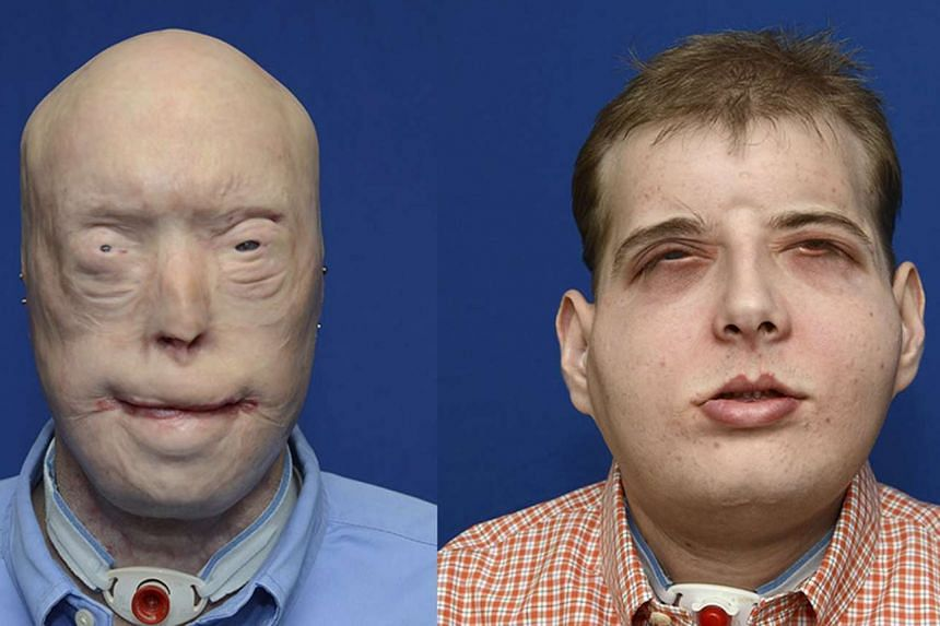 Mr Hardison lost his eyelids, ears, lips, most of his nose, and hair in 2001 when the roof of a burning home fell on him. He underwent a complex face transplant in August.