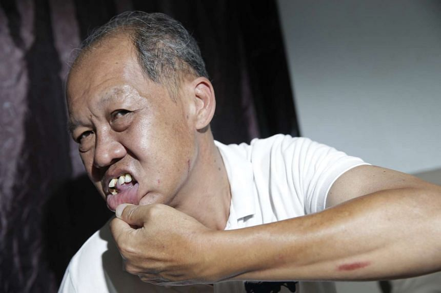 Uber driver Goh Kok Ling, 59, showing the injury on his left forearm, a loose front tooth, his missing dentures from his lower gums and swollen left cheek with a small cut on Nov 28, 2015.