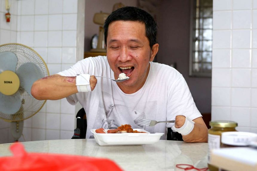 Mr Tan's ordeal began after he ate raw Chinese-style fish from a porridge stall in Chinatown in July 2015. He and his family are now adjusting to life after the operation.