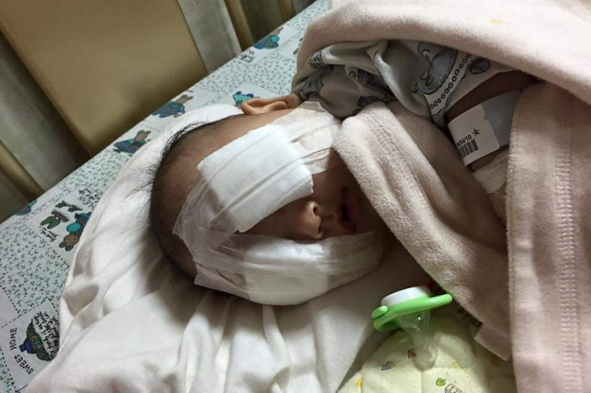 The baby had an operation to remove her eyeballs at four months.