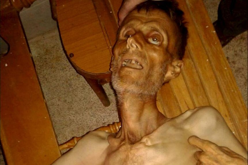 An emaciated man in Madaya is seen in this undated picture taken from social media.
