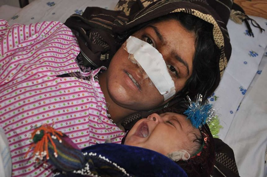 Ms Reza Gul lies in bed with her baby as she receives treatment at a hospital on Jan 19, 2016.