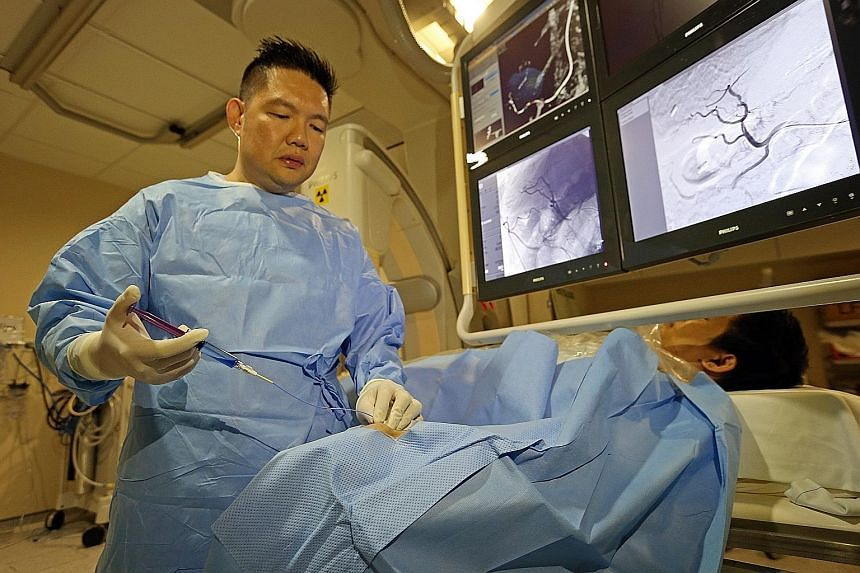 Professor Pua shows how the new technique to treat liver cancer works in a mock procedure. A catheter is inserted through the radial artery in the wrist instead of the femoral artery in the groin.
