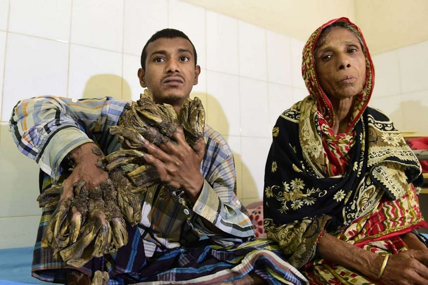 """Mr Bajandar with his mother in his hospital room at Dhaka Medical College Hospital yesterday. The 26-year-old Bangladeshi, who has been dubbed """"Tree Man"""" for the massive bark-like warts on his hands and feet, had been unable to afford treatment to re"""