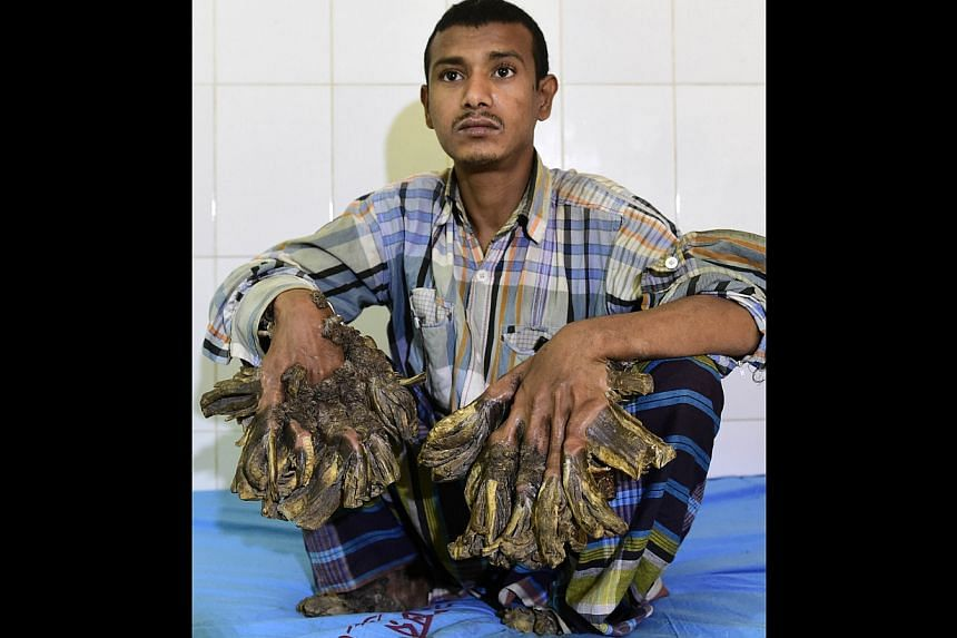 "Abul Bajandar, 26, dubbed ""Tree Man"" for massive bark-like warts on his hands and feet, sits at Dhaka Medical College Hospital on Sunday."