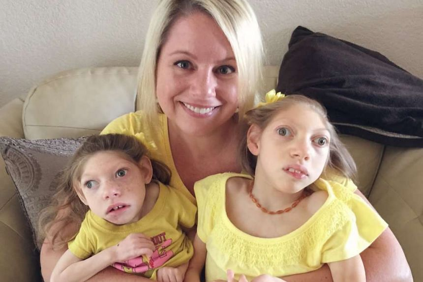 Mrs Gwen Hartley with her daughters, who have microcephaly.