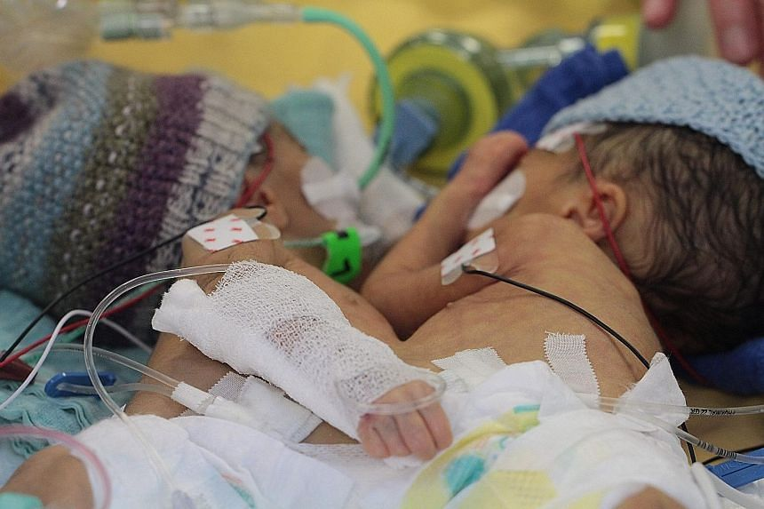 Conjoined twins Lydia (left) and Maya before their operation in Switzerland last December. They were eight days old when doctors separated them. The girls, who have a triplet sister, weighed a total of 2.2kg at the time of their operation.
