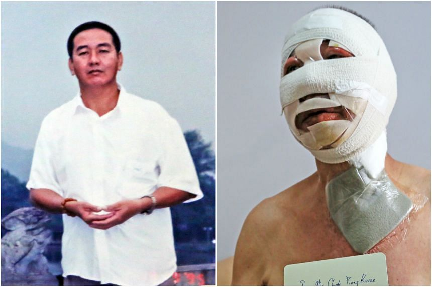 Vegetarian stall owner Chiok Tiong Kwee suffered burns on his hands, neck and 95 per cent of his face.
