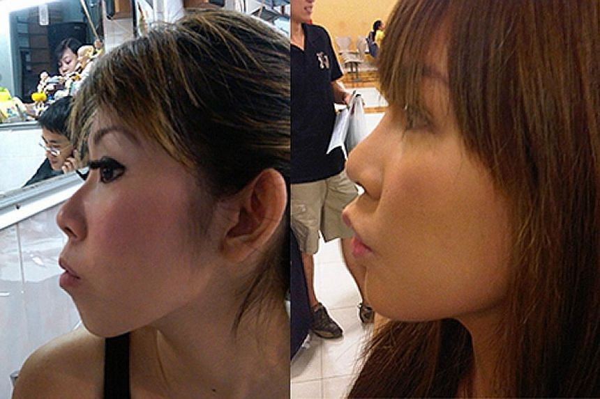 Blogger Jacqueline Koh had breast implants and chin implants, as well as plastic surgery to pin her ears back, raise her nose bridge, lengthen her eyes at both the inner and outer corners; double-eyelid surgery for deeper eyelids; and a cheekbone red