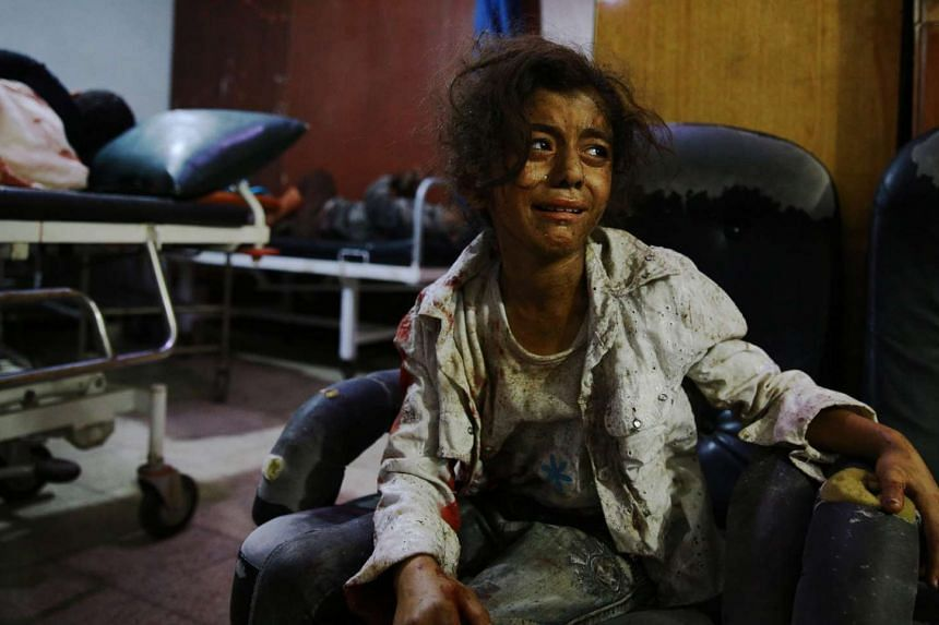 A wounded Syrian girl cries at a makeshift hospital in the rebel-held area of Douma, in Abd Doumany's photo.