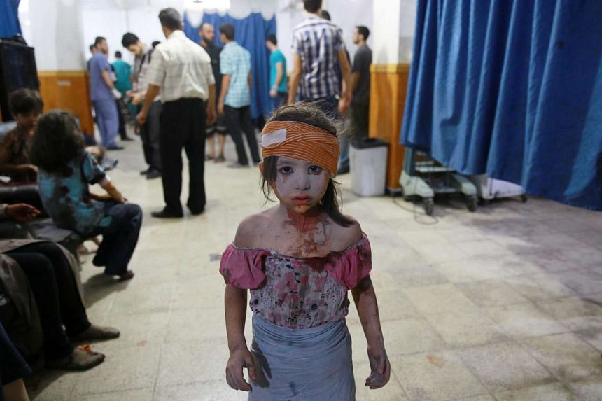 A wounded Syrian girl looks on at a makeshift hospital in the rebel-held area of Douma, in Abd Doumany's photo.