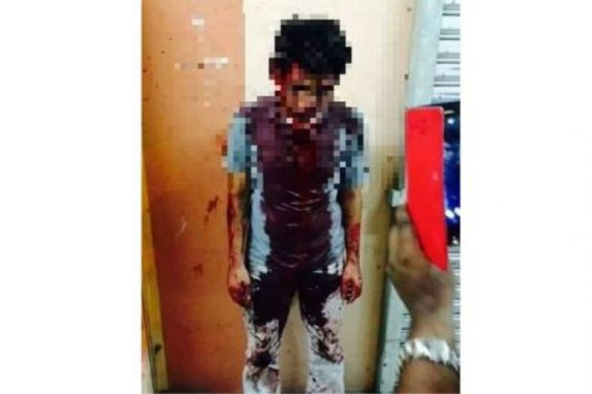 The alleged rapist suffered injuries on his head, face and legs.