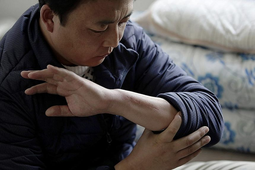 "Chinese ""trainee"" Zhang Wenkun showing a scar on his arm from an injury at a waste recycling firm. He received insurance payments while he was off work for three months, but when he returned to work and his hand began to hurt again, the company threw"