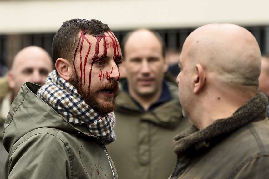 A man bloodied in clashes between Arsenal and Tottenham Hotspur fans before the North London derby.