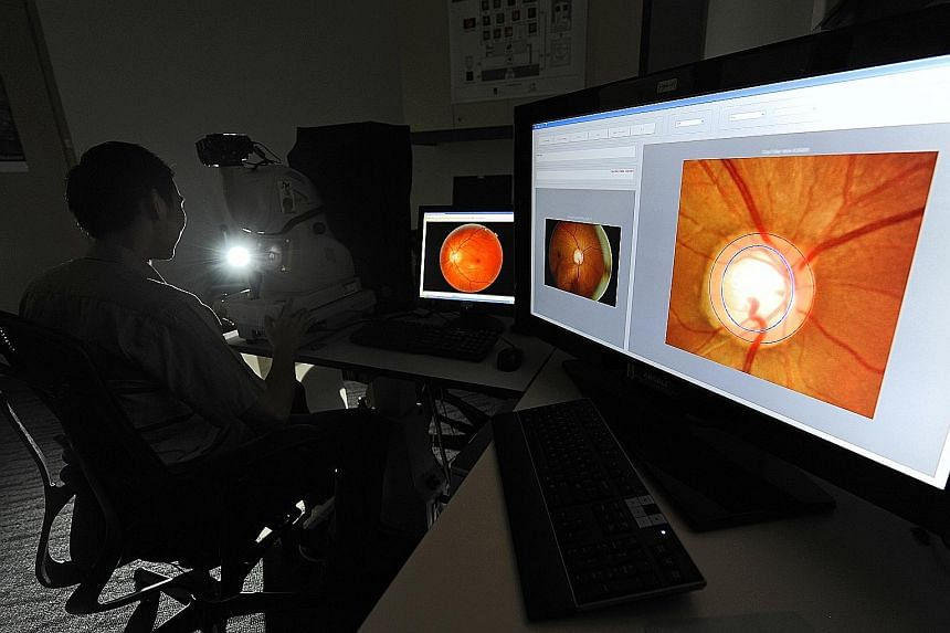An eye examination can help detect any problems, such as retinal tears, early. Consult your ophthalmologist immediately if you experience a sudden increase in floaters, light flashes or darkness at the sides of your vision (peripheral vision loss).