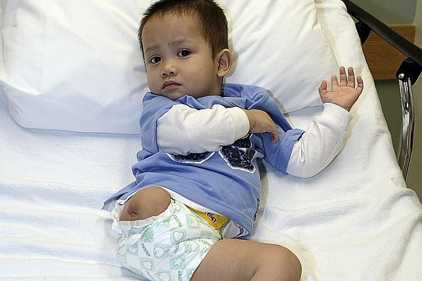 Thien Nhan back in 2009. The abandoned child was mauled by a wild dog.
