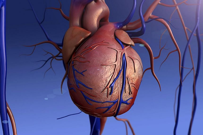 Heart murmurs can be harmless, and are due to increased blood flow through the heart or nearby blood vessels, or they may be due to heart valve disease.