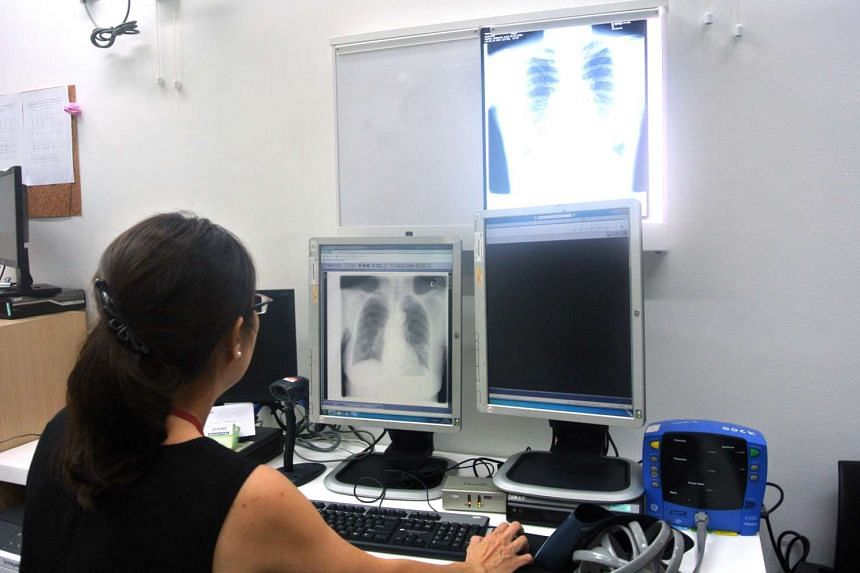 A doctor at Tan Tock Seng Hospital's Tuberculosis Control Unit examines an x-ray of a TB patient's lungs.