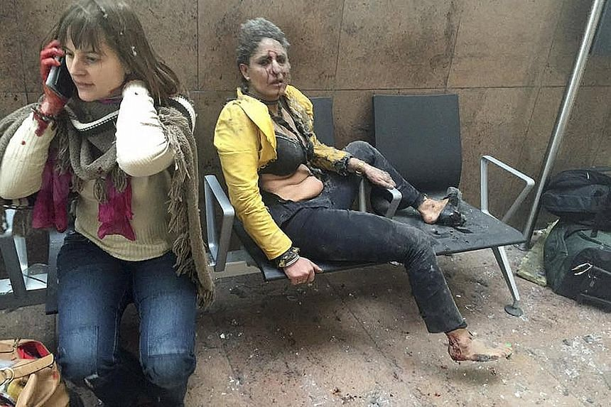 Victims of the explosions at Zaventem airport in Brussels waiting for help after the attack yesterday.