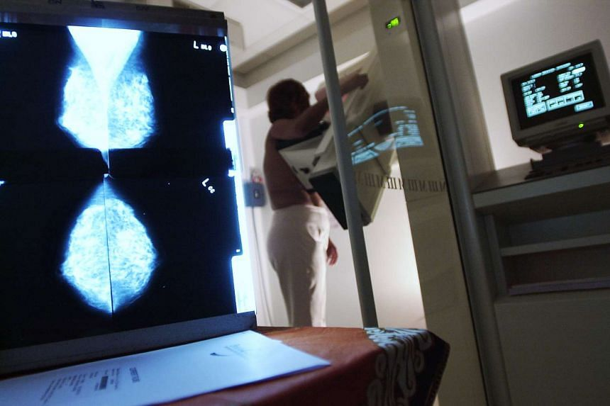 Posed photograph of a patient going through breast screening on a mammogram machine. Cancer patients may soon be offered a less painful test to detect cancer via a new method known as liquid biopsy.