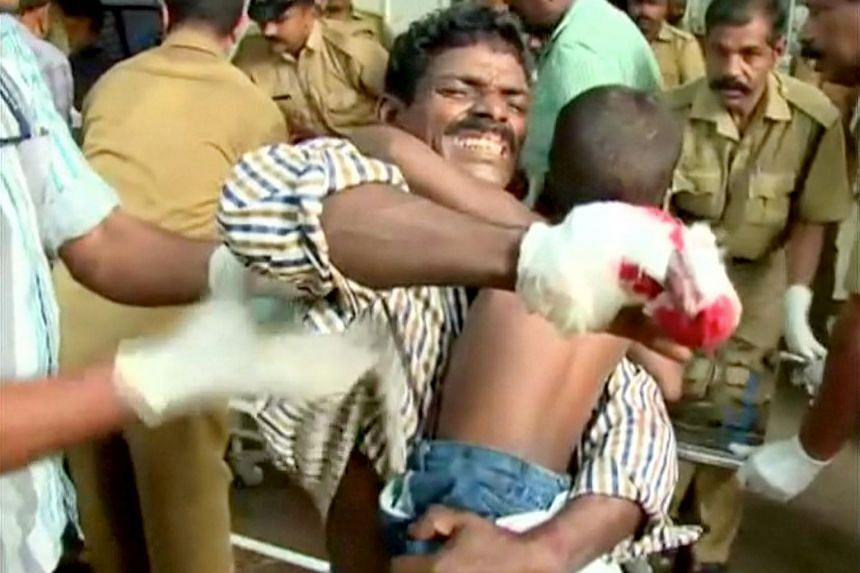 An injured man carries his child before receiving medical attention at a hospital.