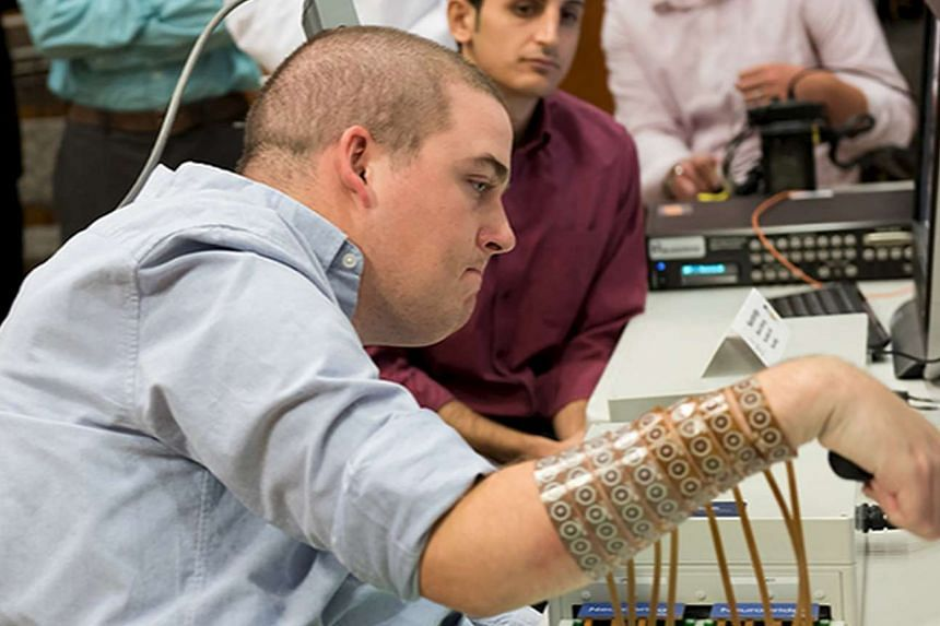 Ian Burkhart, 24, is shown using neural bypass technology in Ohio State University Wexner Medical Center. Burkhart, who became paralysed in an accident, can now move his hands thanks to a computer chip in his brain that lets his mind guide his hands