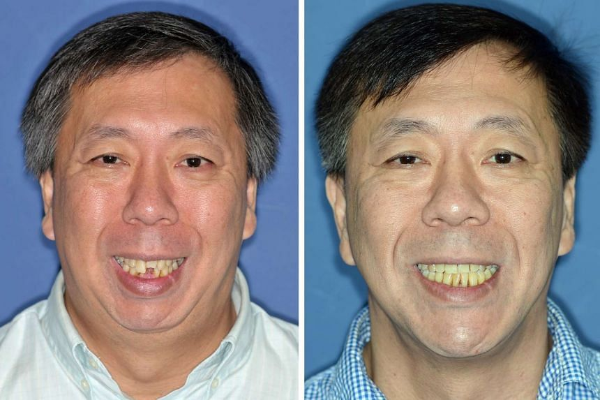 Mr Ong before (left) and after the surgery and braces. The whole process took three years to complete.