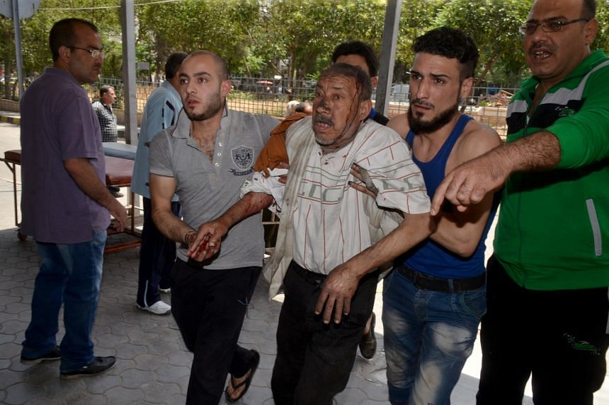 An injured Syrian man is helped outside a hospital following shelling on the government-held Meidan neighbourhood, in the northern Syrian city of Aleppo, on May 27, 2016.