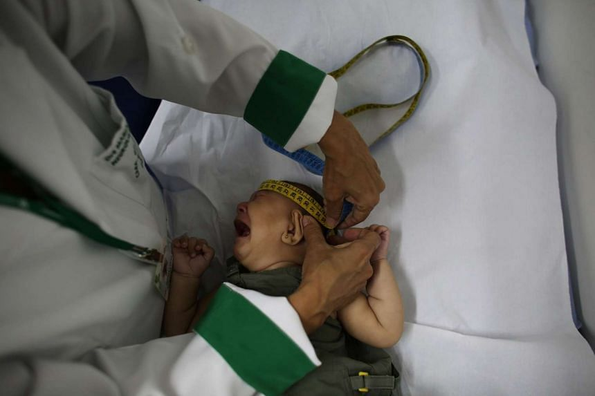 A baby born with microcephaly - thought to be caused by the Zika virus - has her head measured in Sao Paulo, Brazil.