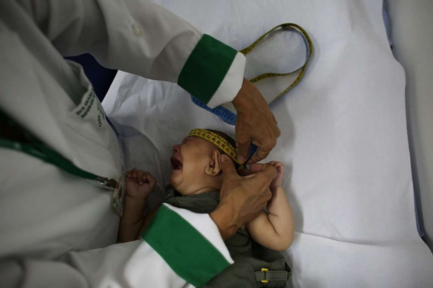 A baby gets her head measured by the neurologist in Brazil, on April 20, 2016. Microcephaly, a birth defect marked by small head size, can lead to severe developmental problems.