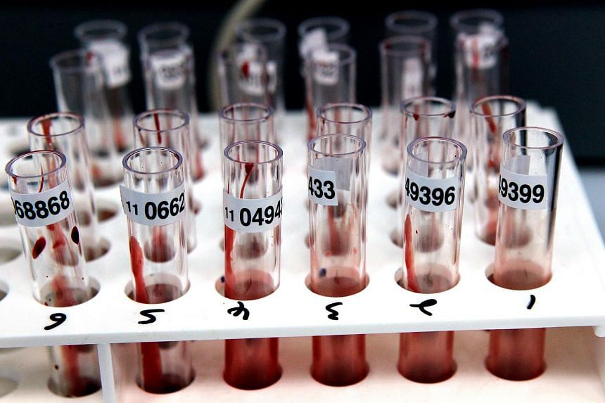 Test tubes containing blood samples. There were 455 new cases of human immunodeficiency virus (HIV) infections reported among Singapore citizens and permanent residents last year, said the Ministry of Health (MOH).