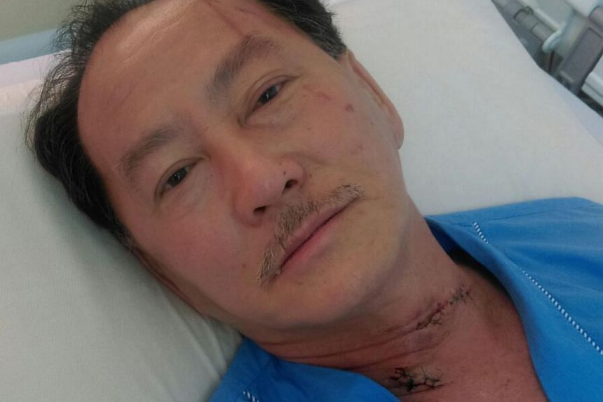 Mr Ong Thiam Soon, 57, in his ward at Changi General Hospital, where he underwent surgery for multiple injuries on his neck, forehead and leg.